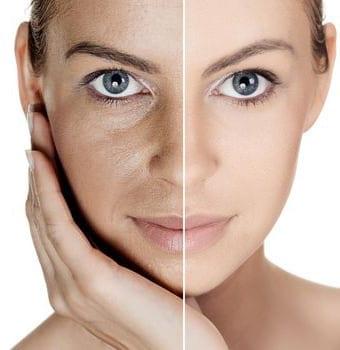antes y después de peeling químico