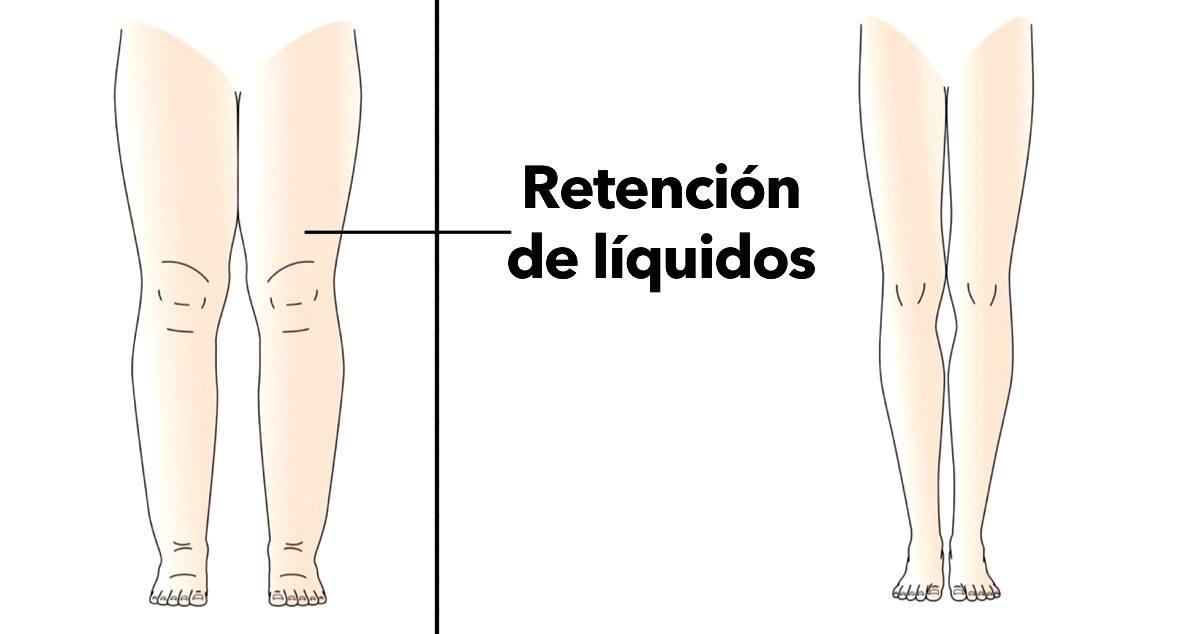 Causas y remedios para la retención de líquidos