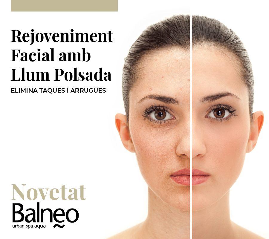 Fotorejoveniment Facial amb Llum polsada Vilanova i la Geltrú