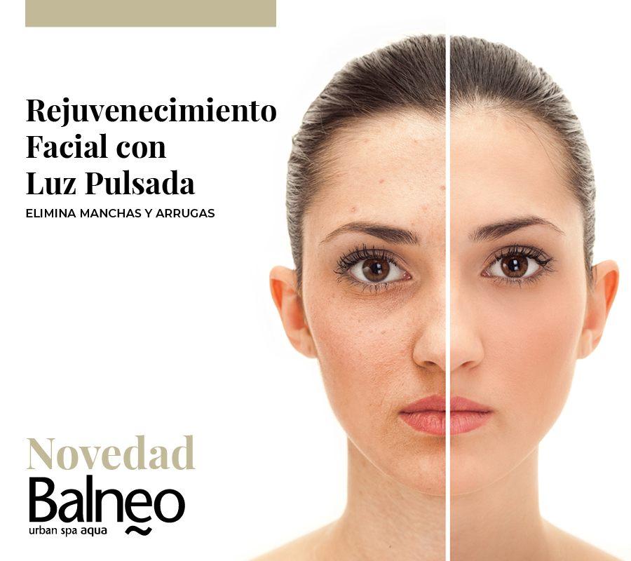 Rejuvenecimiento Facial en Vilanova i la Geltrú